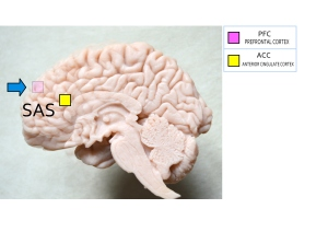 L'ipnosi è resa possibile dall'attivazione di alcune aree corticali e dall'inibizione di altre (in particolare la PFC)